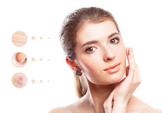 Skin problem of woman face Stock Photos