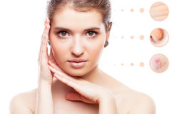 Skin problem of woman face Stock Image