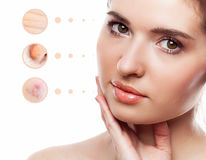 Skin problem of woman face Stock Photography
