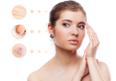 Skin problem of woman face. Concept of skin problem of woman face Royalty Free Stock Images