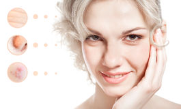 Skin problem of woman face Royalty Free Stock Photos
