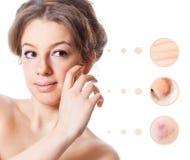 Skin problem of woman face Stock Photos