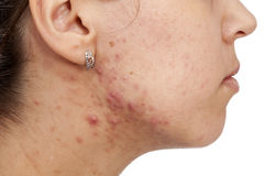 Skin problems Stock Photography