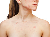 Skin problems. Portrait of woman showing her pimples on isolated white background Royalty Free Stock Images