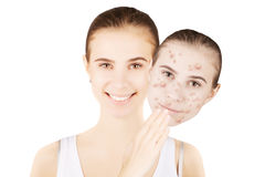 Skin problems: face with healthy skin and with blemishes Royalty Free Stock Photos