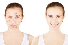 Skin problems: face with healthy skin and face with acne. Skin problems: face with healthy skin and face with blemishes Stock Photography