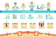 Skin Problems Infographic Medical Poster. Cartoon Style Healthcare Acne Issue Info Illustration. Flat Vector Simplified Illustration On White Background vector illustration