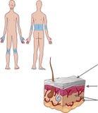 Skin psoriasis royalty free illustration