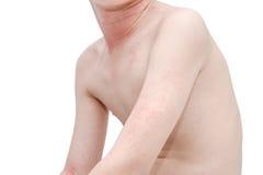 Skin with rash Stock Photos