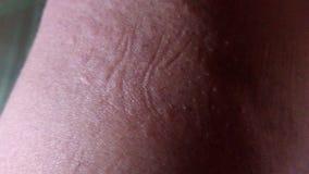Skin rashes stock photos