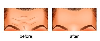 Skin rejuvenation forehead. before and after. Vector illustration of a rejuvenation of the skin of the forehead. before and after Stock Illustration