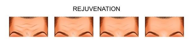Skin rejuvenation forehead Stock Photography