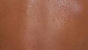 The skin is scorched in the sun with in macro. There are signs of an incipient melanoma Royalty Free Stock Photos