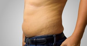 Skin Stretch. Men's skin Stretch caused by obesity causing stretch marks Stock Image