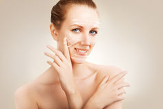 Skin surgery - woman portrait with marks Stock Photo