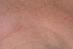 Skin texture. Macro view of human skin texture stock photos