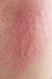Skin texture Stock Photos