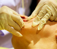 Skin tightening with gold thread Stock Images