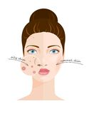 Skin types. Vector Stock Photo