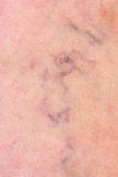 Skin with varicose veins. Skin with some varicose veins Stock Image