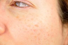 Skin of woman with blemish and spots. Closeup of a woman cheek with liver spot causes by the large exposition sun royalty free stock photo
