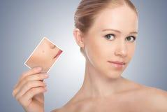 Skincare del concepto. Piel de beautywoman imagen de archivo libre de regalías