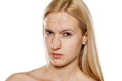 Skincare - pelle problematica Fotografia Stock Libera da Diritti