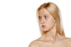 Skincare - pelle problematica Immagine Stock Libera da Diritti
