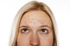 Skincare - piel problemática Fotografía de archivo libre de regalías