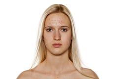 Skincare - piel problemática Fotos de archivo