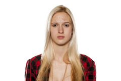 Skincare - piel problemática Imagen de archivo