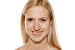 Skincare - piel problemática Fotos de archivo libres de regalías