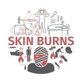 Skinl Burns kine banner. Treatment. Vector illustrations. Skinl Burns kine icons. Treatment. Vector illustrations. Vector signs for web graphics Stock Images