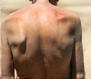 skolioza Rachiocampsis Kyphosis Kabłąkowatość kręgosłup zdjęcie stock