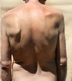 skolioza Rachiocampsis Kyphosis Kabłąkowatość kręgosłup obraz royalty free