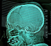Skomputeryzowana ekranowa promieniowanie rentgenowskie tomografia ludzki mózg, CT obraz cyfrowy zdjęcie royalty free