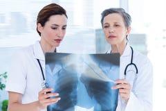Skoncentrowani medyczni koledzy egzamininuje promieniowanie rentgenowskie wpólnie obrazy stock