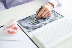 Skoncentrowany dentysty obsiadanie przy stołem z szczęką pobiera próbki zębu modela w stomatologicznej biurowej fachowej stomatol fotografia stock