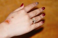 Skrapad sår på damhanden Royaltyfria Bilder