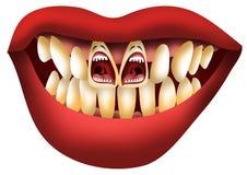 skrikiga tänder för hjälpproblem Arkivbild