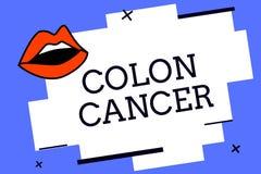 Skriva cancer för anmärkningsvisningkolon Affärsfoto som ställer ut cancer som bildar i silkespappren av den stora inälvan stock illustrationer