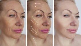 Skrynklor för efter tålmodig effekt för tillvägagångssätt för skillnad för pigmentering för effekt för spänningspilterapi royaltyfri foto