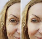 skrynklor och föryngring för kvinna före och efter arkivbild