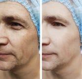 Skrynklor vänder mot behandlingar för effekt för skillnad för terapi för korrigering för borttagning för påseman före och efter arkivbilder