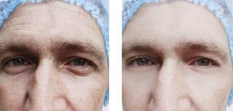 Skrynklor vänder mot effektbehandlingar för man före och efter royaltyfri bild