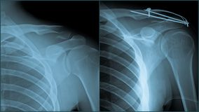 skuldertraumaröntgenstråle Royaltyfri Foto