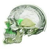 Skull. Green and gray skull generated from photo in PC Stock Photography