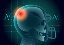 Skull of American football athlete have a red signal. Skull of American football athlete have a red signal on physical monitor background. Illustration about stock illustration