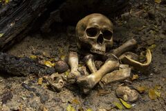 Free Skull And Bones Buried Dug From A Pit In The Graveyard Or Cemetery On The Ground In The Forest Stock Photography - 174768522