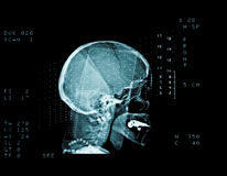 Skull cat scan. Cat scan of a middle aged woman head Royalty Free Stock Photo